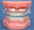 A range of dental appliances are available