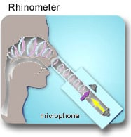 The rhinometer measures airflow and detects obstructions in the nasal passages.