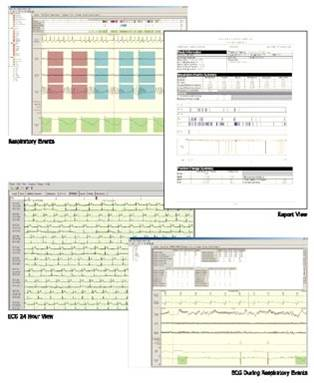 Data from the recorders is downloaded and interpreted by specialist independent sleep physicians